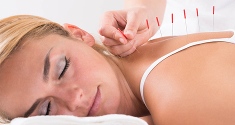 Acupuncture-Treatment